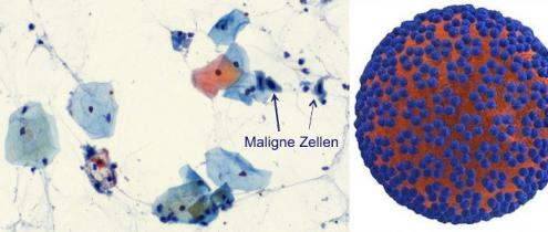 links: Pap-Test mit eingefärbten Zellen und Tumorzellen, rechts: HP-Virus