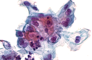 Pap-Test Abstrich